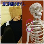 烏口突起の施術